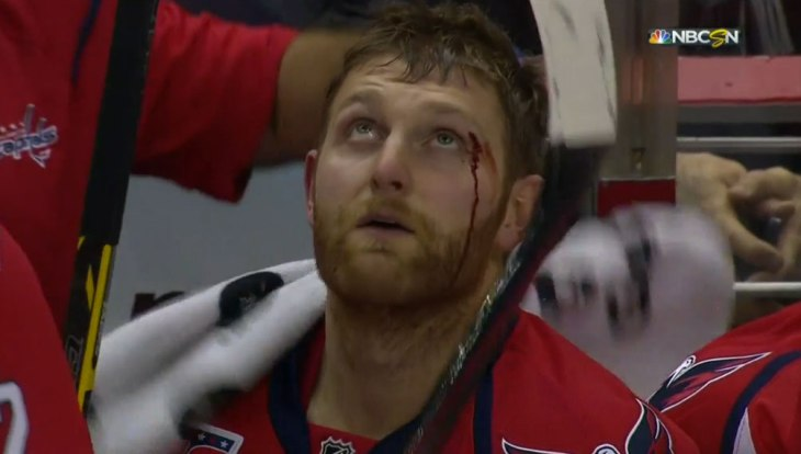 karl-alzner-eye.jpg