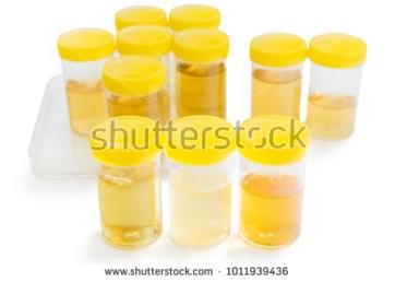 urinesamples